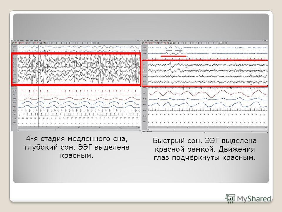 4-я стадия медленного сна, глубокий сон. ЭЭГ выделена красным. Быстрый сон. ЭЭГ выделена красной рамкой. Движения глаз подчёркнуты красным.