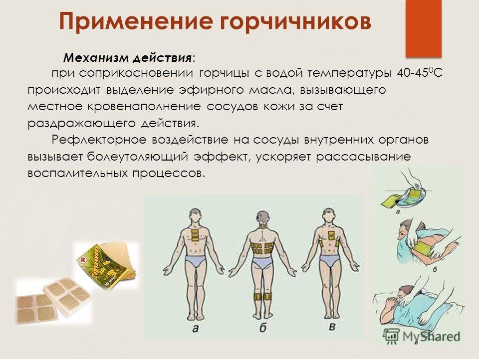 Применение горчичников Механизм действия : при соприкосновении горчицы с водой температуры 40-45 0 С происходит выделение эфирного масла, вызывающего местное кровенаполнение сосудов кожи за счет раздражающего действия. Рефлекторное воздействие на сос