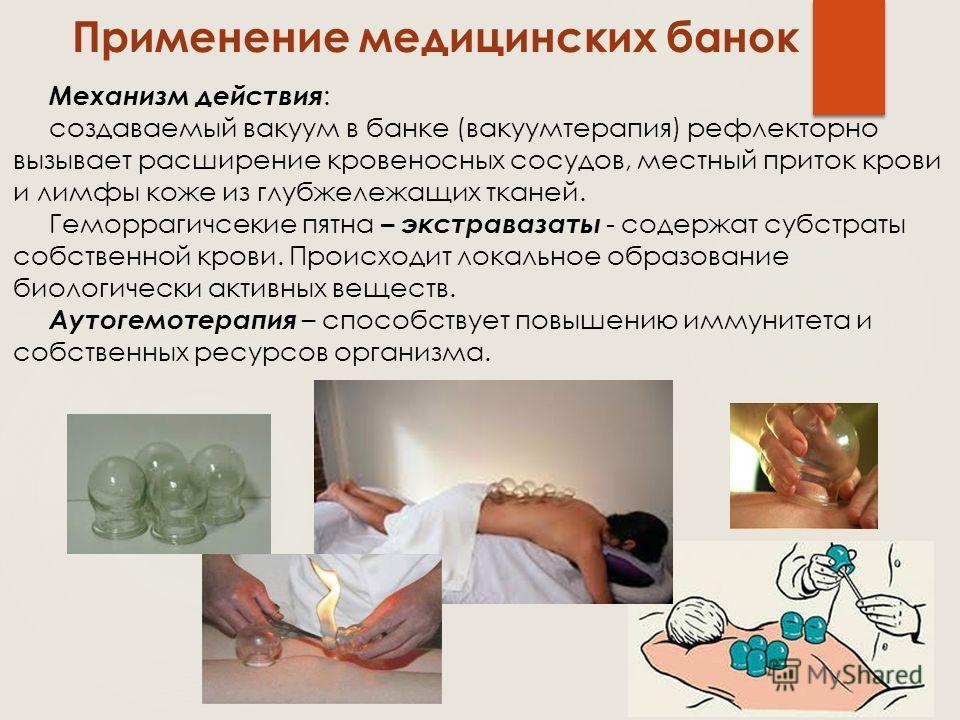 Применение медицинских банок Механизм действия : создаваемый вакуум в банке (вакуумтерапия) рефлекторно вызывает расширение кровеносных сосудов, местный приток крови и лимфы коже из глубжележащих тканей. Геморрагичсекие пятна – экстравазаты - содержа