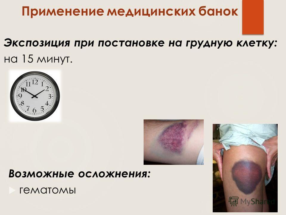 Возможные осложнения: гематомы Применение медицинских банок Экспозиция при постановке на грудную клетку: на 15 минут.