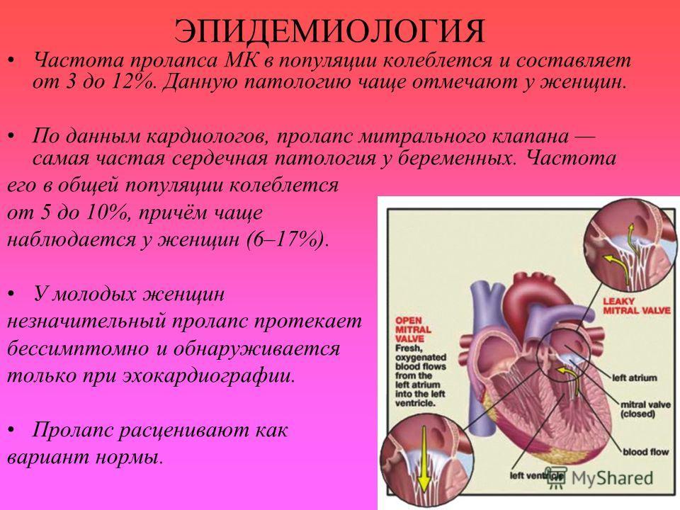 ЭПИДЕМИОЛОГИЯ Частота пролапса МК в популяции колеблется и составляет от 3 до 12%. Данную патологию чаще отмечают у женщин. По данным кардиологов, пролапс митрального клапана самая частая сердечная патология у беременных. Частота его в общей популяци
