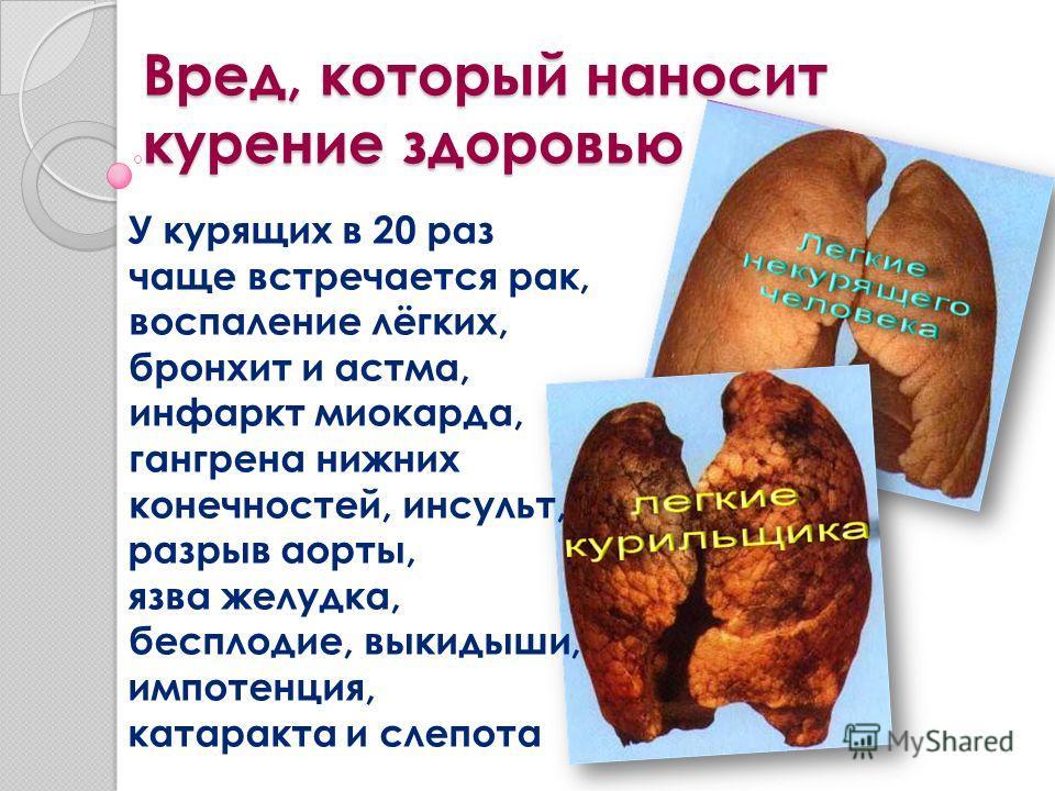 Вред, который наносит курение здоровью У курящих в 20 раз чаще встречается рак, воспаление лёгких, бронхит и астма, инфаркт миокарда, гангрена нижних конечностей, инсульт, разрыв аорты, язва желудка, бесплодие, выкидыши, импотенция, катаракта и слепо