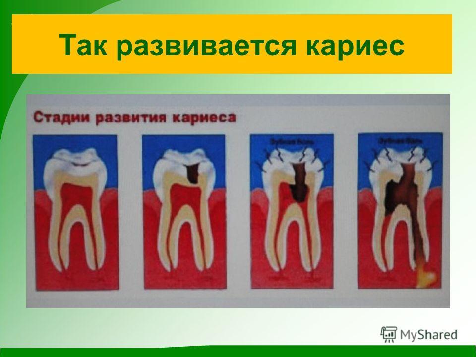 Самые главные враги зубов – это микробы и вредные бактерии! Особенно они любят сладкое. Когда мы едим что-то сладкое, то и они «едят» сладкое, разрастаются и превращаются в кислоту, а кислота разрушает эмаль зуба и возникает… кариес