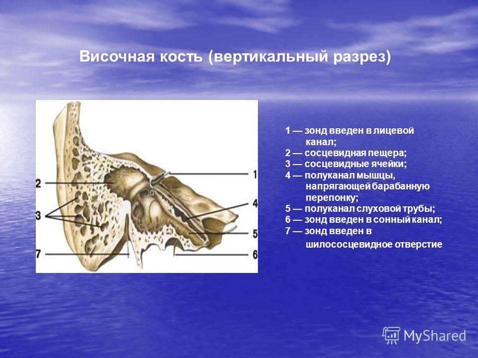 1 зонд введен в лицевой канал; 2 сосцевидная пещера; 3 сосцевидные ячейки; 4 полуканал мышцы, напрягающей барабанную перепонку; 5 полуканал слуховой трубы; 6 зонд введен в сонный канал; 7 зонд введен в шилососцевидное отверстие Височная кость (вертик