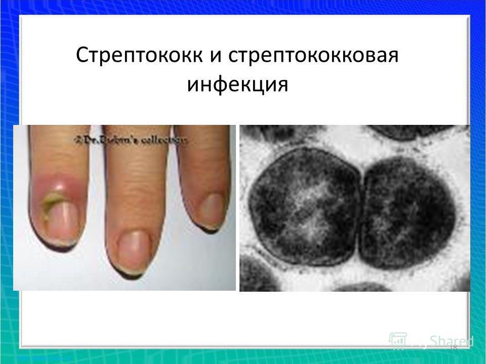 18 Стрептококк и стрептококковая инфекция