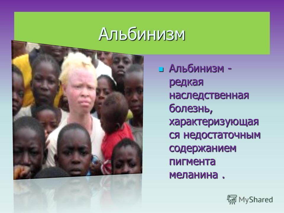 Альбинизм Альбинизм - редкая наследственная болезнь, характеризующая ся недостаточным содержанием пигмента меланина. Альбинизм - редкая наследственная болезнь, характеризующая ся недостаточным содержанием пигмента меланина. Альбинизм - на