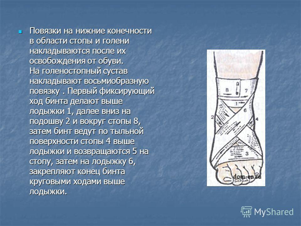 Повязки на нижние конечности в области стопы и голени накладываются после их освобождения от обуви. На голеностопный сустав накладывают восьмиобразную повязку. Первый фиксирующий ход бинта делают выше лодыжки 1, далее вниз на подошву 2 и вокруг стопы