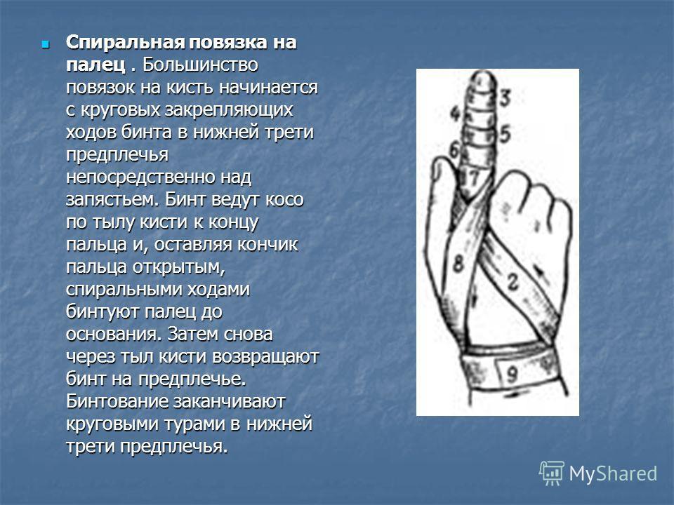 Спиральная повязка на палец. Большинство повязок на кисть начинается с круговых закрепляющих ходов бинта в нижней трети предплечья непосредственно над запястьем. Бинт ведут косо по тылу кисти к концу пальца и, оставляя кончик пальца открытым, спираль