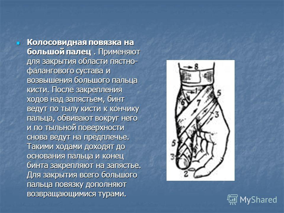 Колосовидная повязка на большой палец. Применяют для закрытия области пястно- фалангового сустава и возвышения большого пальца кисти. После закрепления ходов над запястьем, бинт ведут по тылу кисти к кончику пальца, обвивают вокруг него и по тыльной