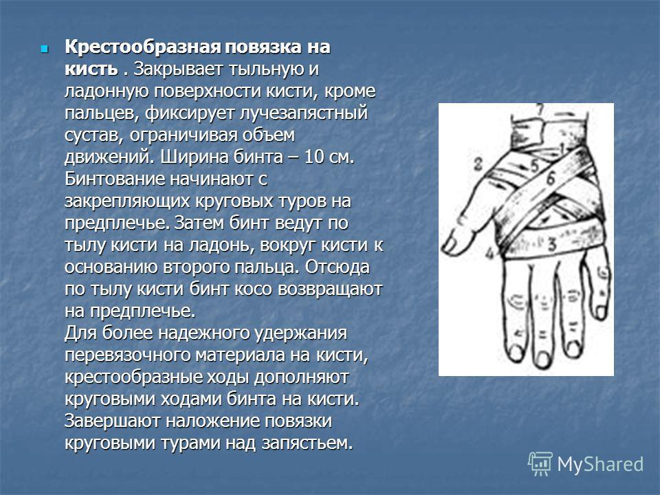 Крестообразная повязка на кисть. Закрывает тыльную и ладонную поверхности кисти, кроме пальцев, фиксирует лучезапястный сустав, ограничивая объем движений. Ширина бинта – 10 см. Бинтование начинают с закрепляющих круговых туров на предплечье. Затем б