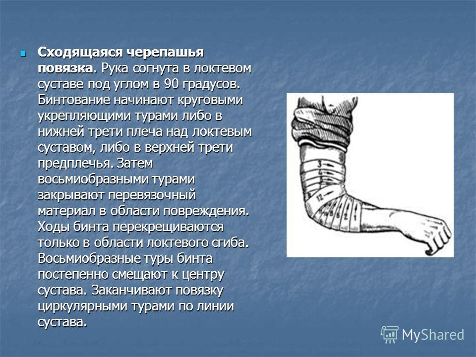 Сходящаяся черепашья повязка. Рука согнута в локтевом суставе под углом в 90 градусов. Бинтование начинают круговыми укрепляющими турами либо в нижней трети плеча над локтевым суставом, либо в верхней трети предплечья. Затем восьмиобразными турами за