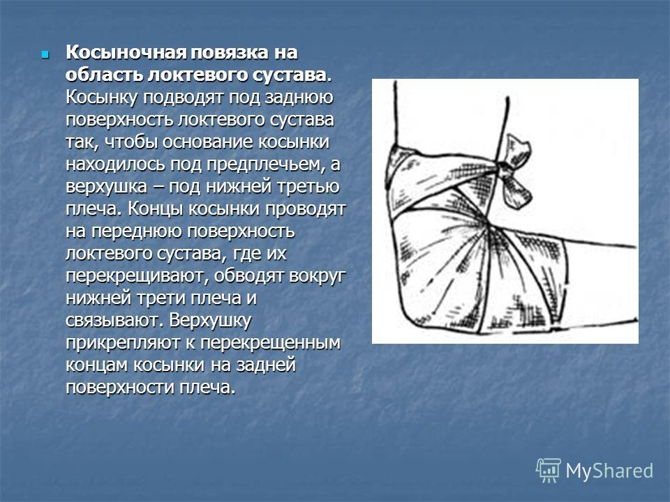 Косыночная повязка на область локтевого сустава. Косынку подводят под заднюю поверхность локтевого сустава так, чтобы основание косынки находилось под предплечьем, а верхушка – под нижней третью плеча. Концы косынки проводят на переднюю поверхность л