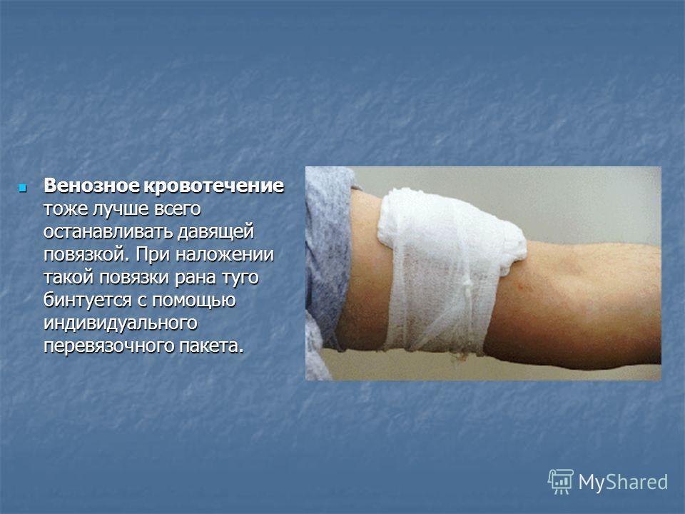 Венозное кровотечение тоже лучше всего останавливать давящей повязкой. При наложении такой повязки рана туго бинтуется с помощью индивидуального перевязочного пакета. Венозное кровотечение тоже лучше всего останавливать давящей повязкой. При наложени