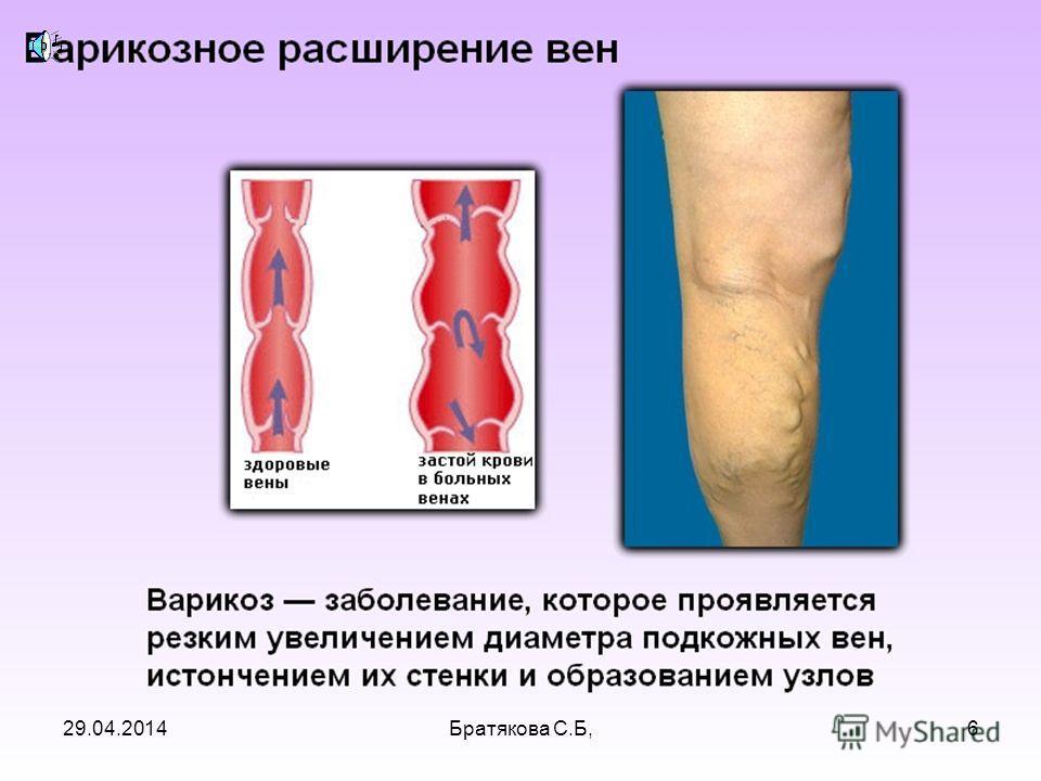 29.04.20146Братякова С.Б,