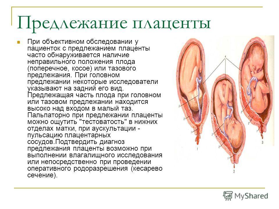 Предлежание плаценты отзывы беременных 14