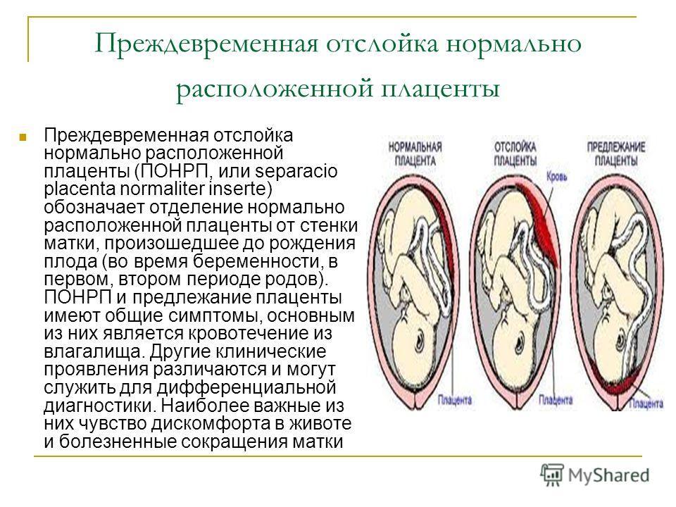 Преждевременная отслойка нормально расположенной плаценты Преждевременная отслойка нормально расположенной плаценты (ПОНРП, или separacio placenta normaliter inserte) обозначает отделение нормально расположенной плаценты от стенки матки, произошедшее