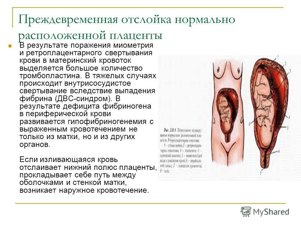 Преждевременная отслойка нормально расположенной плаценты В результате поражения миометрия и ретроплацентарного свертывания крови в материнский кровоток выделяется большое количество тромбопластина. В тяжелых случаях происходит внутрисосудистое сверт