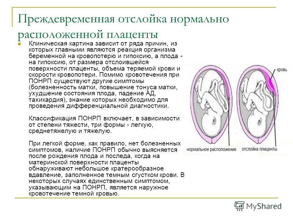 Как лечить преждевременный созревание плацента