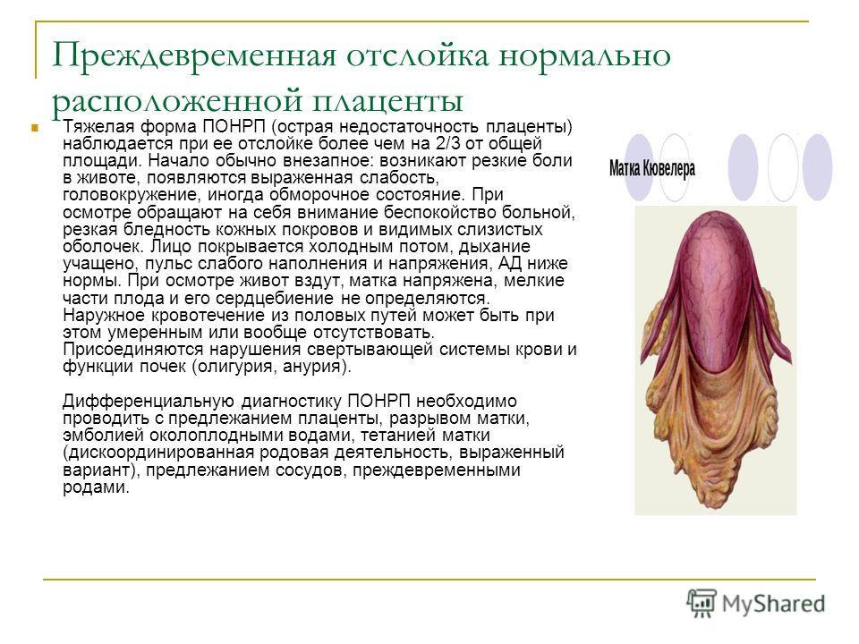 Преждевременная отслойка нормально расположенной плаценты Тяжелая форма ПОНРП (острая недостаточность плаценты) наблюдается при ее отслойке более чем на 2/3 от общей площади. Начало обычно внезапное: возникают резкие боли в животе, появляются выражен