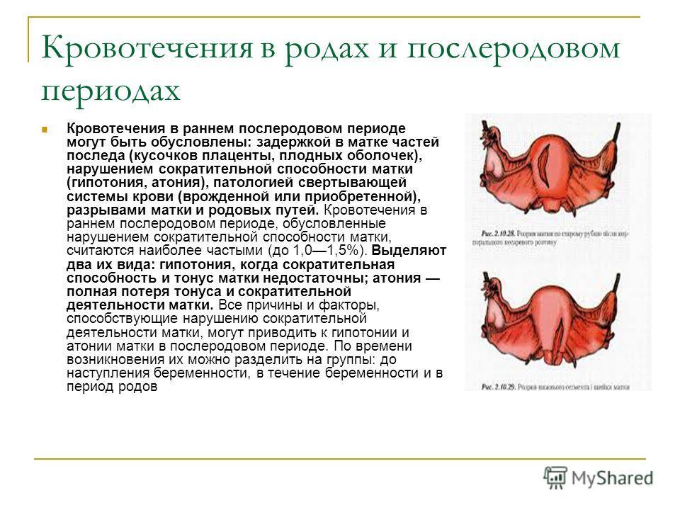Кровотечения в родах и послеродовом периодах Кровотечения в раннем послеродовом периоде могут быть обусловлены: задержкой в матке частей последа (кусочков плаценты, плодных оболочек), нарушением сократительной способности матки (гипотония, атония), п