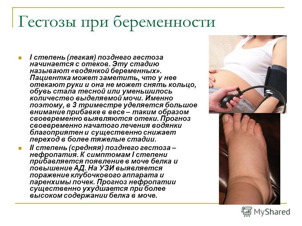 Гестозы при беременности I степень (легкая) позднего гестоза начинается с отеков. Эту стадию называют «водянкой беременных». Пациентка может заметить, что у нее отекают руки и она не может снять кольцо, обувь стала тесной или уменьшилось количество в