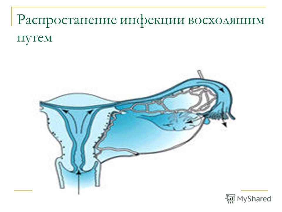 Распростанение инфекции восходящим путем