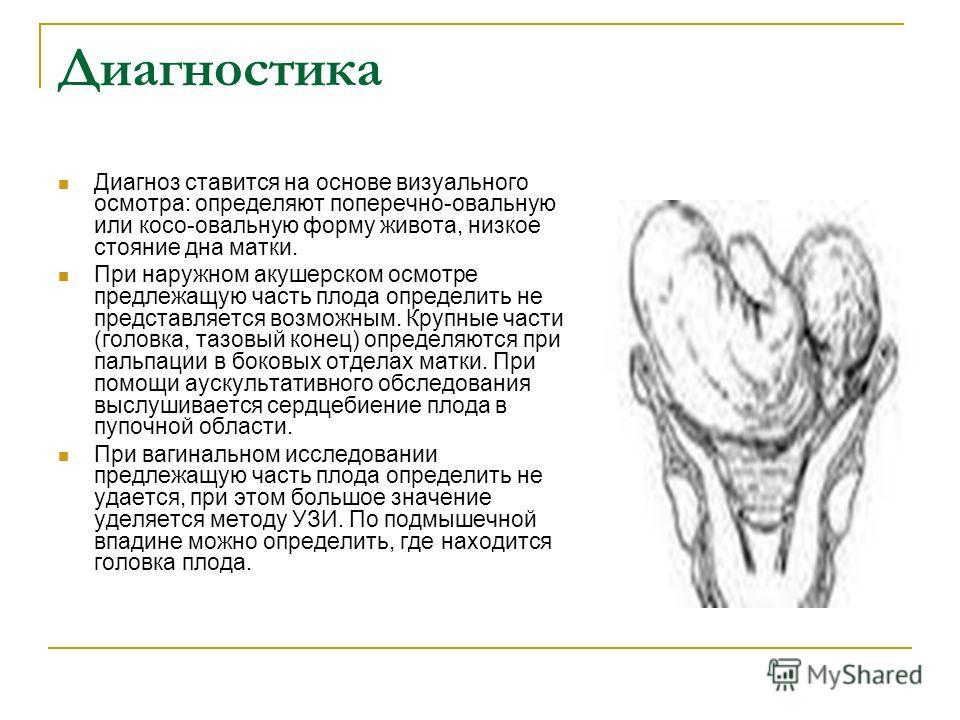 Диагностика Диагноз ставится на основе визуального осмотра: определяют поперечно-овальную или косо-овальную форму живота, низкое стояние дна матки. При наружном акушерском осмотре предлежащую часть плода определить не представляется возможным. Крупны