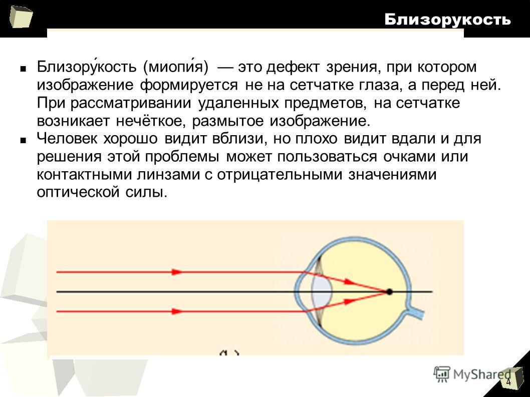 4 Близорукость Близору́кость (миопи́я) это дефект зрения, при котором изображение формируется не на сетчатке глаза, а перед ней. При рассматривании удаленных предметов, на сетчатке возникает нечёткое, размытое изображение. Человек хорошо видит вблизи