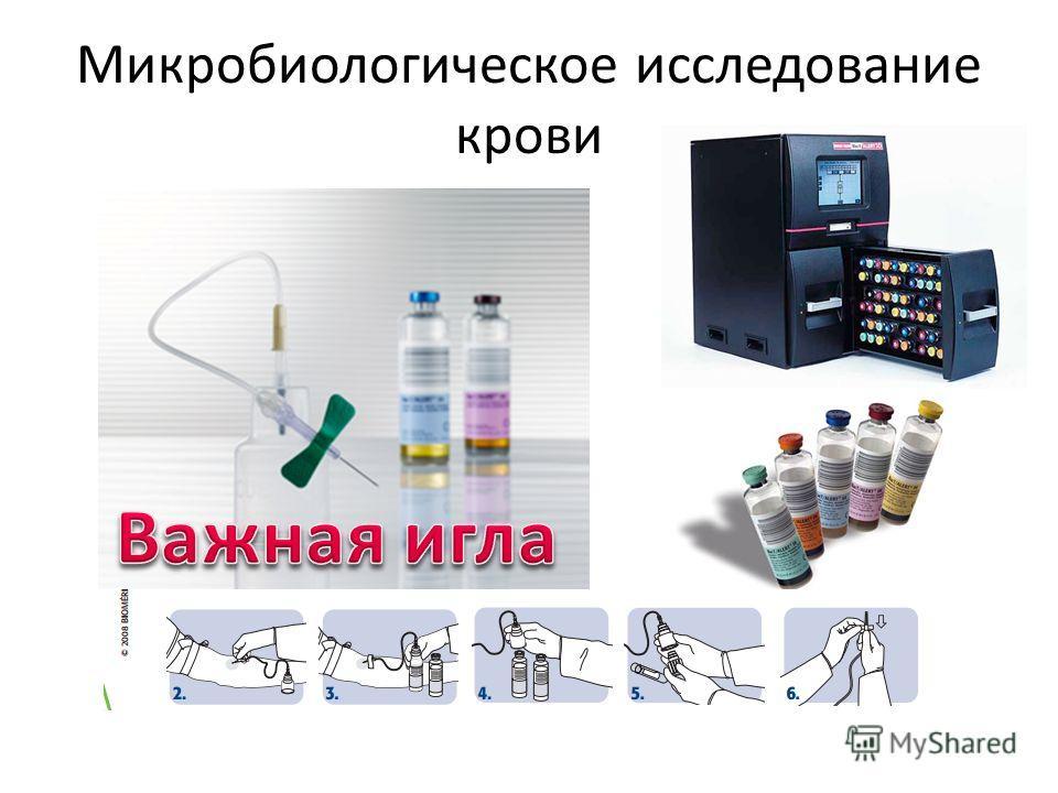 Микробиологическое исследование крови