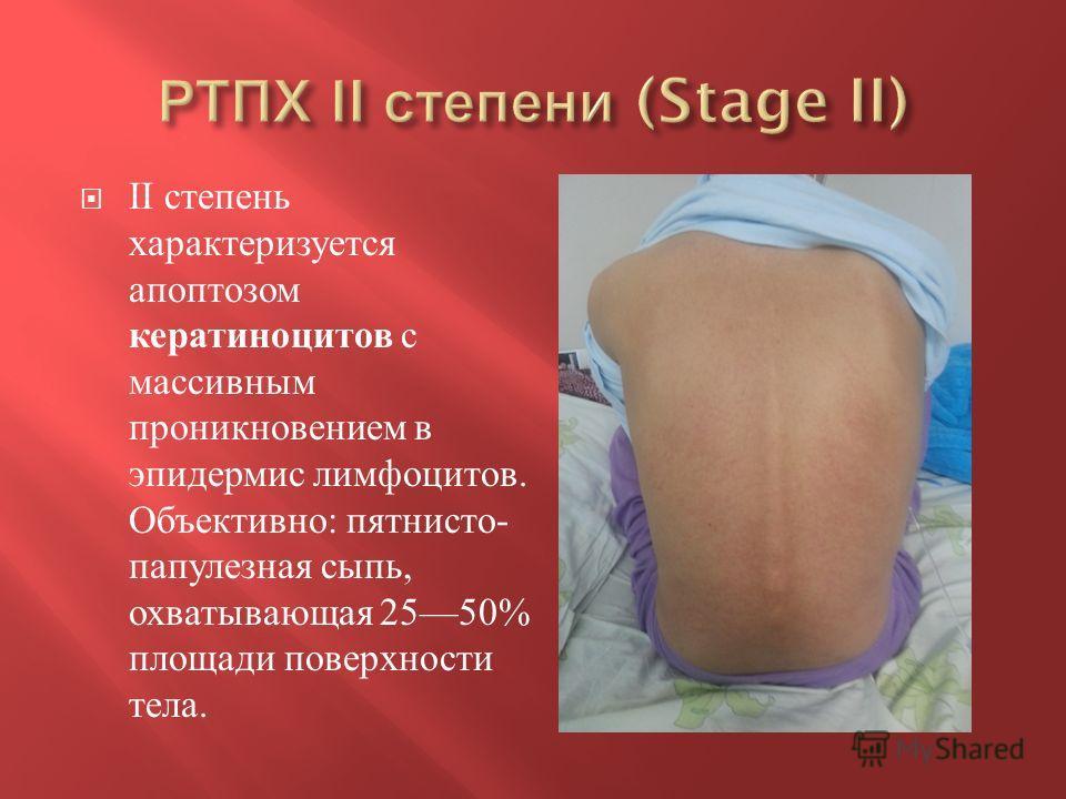 II степень характеризуется апоптозом кератиноцитов с массивным проникновением в эпидермис лимфоцитов. Объективно : пятнисто - папулезная сыпь, охватывающая 2550% площади поверхности тела.