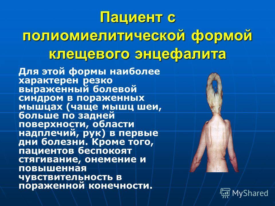 Пациент с полиомиелитической формой клещевого энцефалита Для этой формы наиболее характерен резко выраженный болевой синдром в пораженных мышцах (чаще мышц шеи, больше по задней поверхности, области надплечий, рук) в первые дни болезни. Кроме того, п
