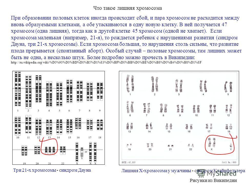 Что такое лишняя хромосома При образовании половых клеток иногда происходит сбой, и пара хромосом не расходится между вновь образуемыми клетками, а обе утаскиваются в одну новую клетку. В ней получается 47 хромосом (одна лишняя), тогда как в другой к