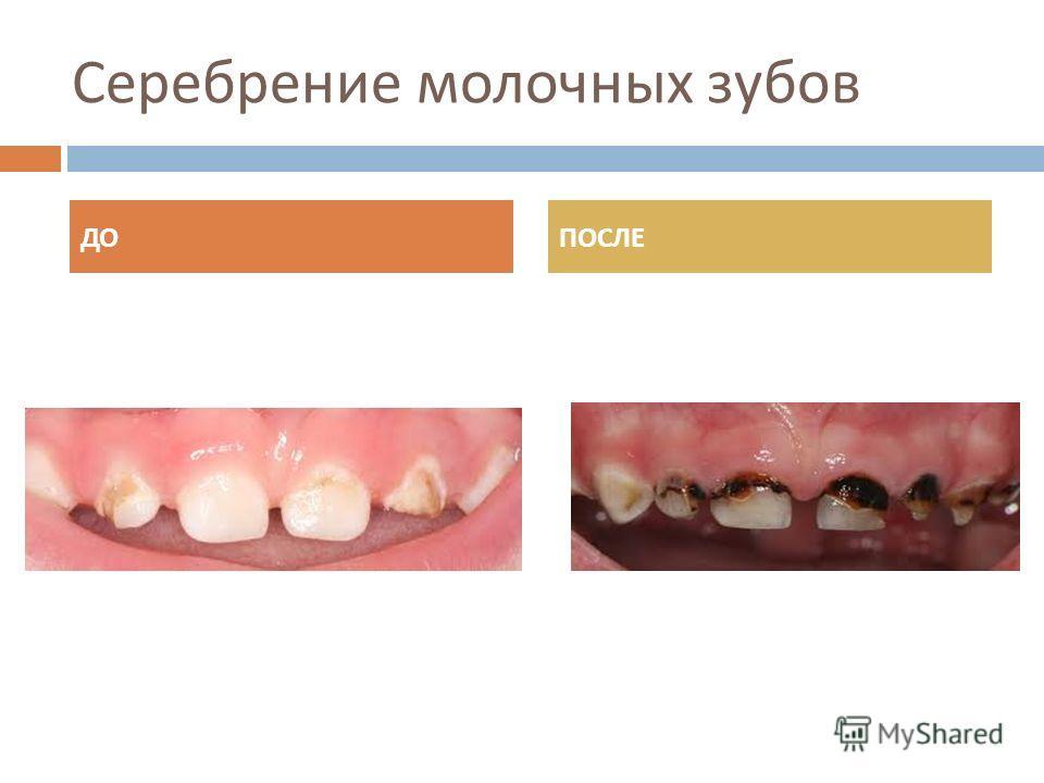 Серебрение молочных зубов ДОПОСЛЕ