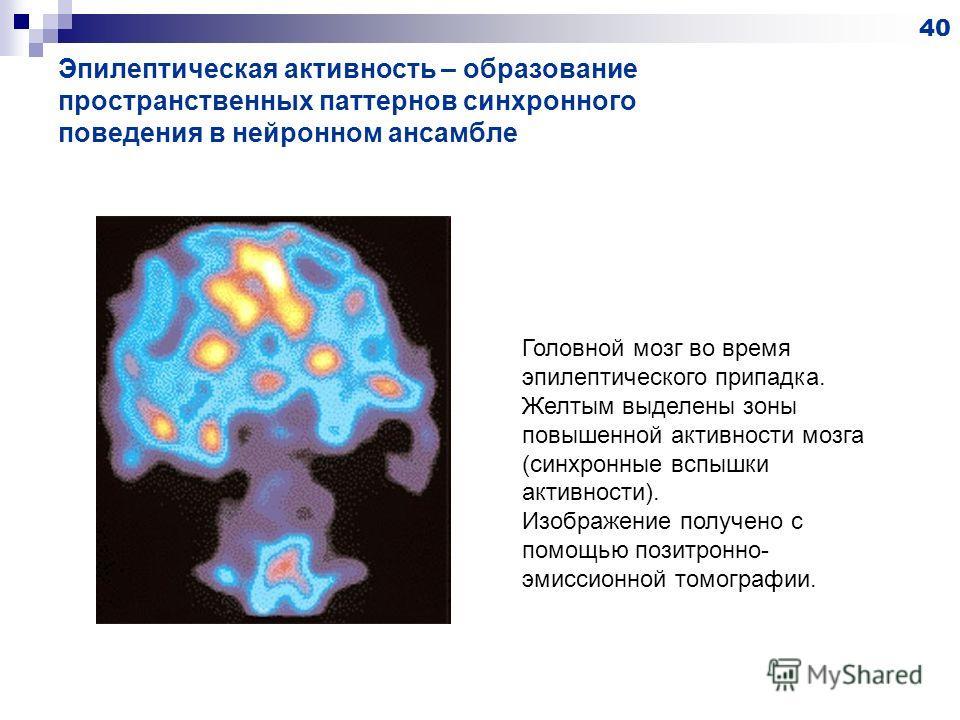 Эпилептическая активность – образование пространственных паттернов синхронного поведения в нейронном ансамбле 40 Головной мозг во время эпилептического припадка. Желтым выделены зоны повышенной активности мозга (синхронные вспышки активности). Изобра