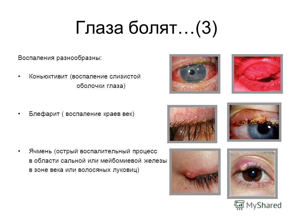 Глаза болят…(3) Воспаления разнообразны: Коньюктивит (воспаление слизистой оболочки глаза) Блефарит ( воспаление краев век) Ячмень (острый воспалительный процесс в области сальной или мейбомиевой железы в зоне века или волосяных луковиц)
