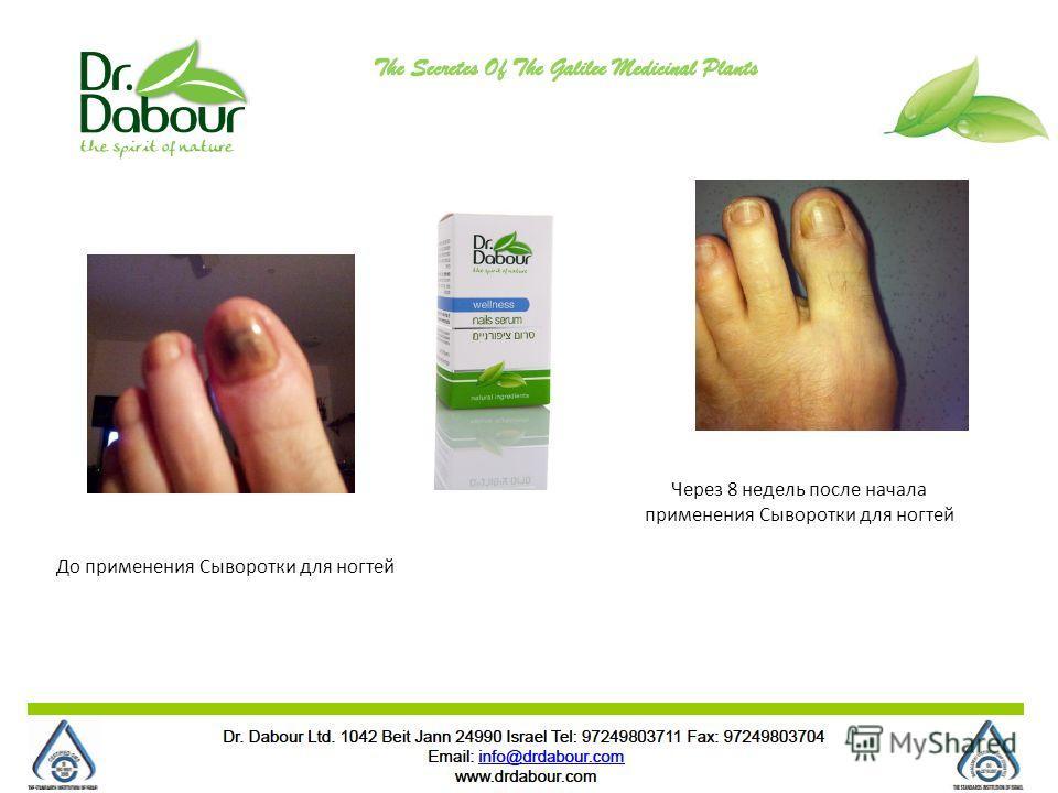 Через 8 недель после начала применения Сыворотки для ногтей До применения Сыворотки для ногтей