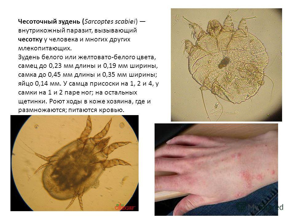 Чесоточный зудень (Sarcoptes scabiei) внутрикожный паразит, вызывающий чесотку у человека и многих других млекопитающих. Зудень белого или желтовато-белого цвета, самец до 0,23 мм длины и 0,19 мм ширины, самка до 0,45 мм длины и 0,35 мм ширины; яйцо