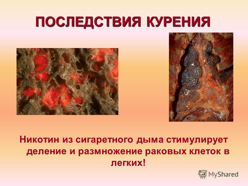 ПОСЛЕДСТВИЯ КУРЕНИЯ Никотин из сигаретного дыма стимулирует деление и размножение раковых клеток в легких!