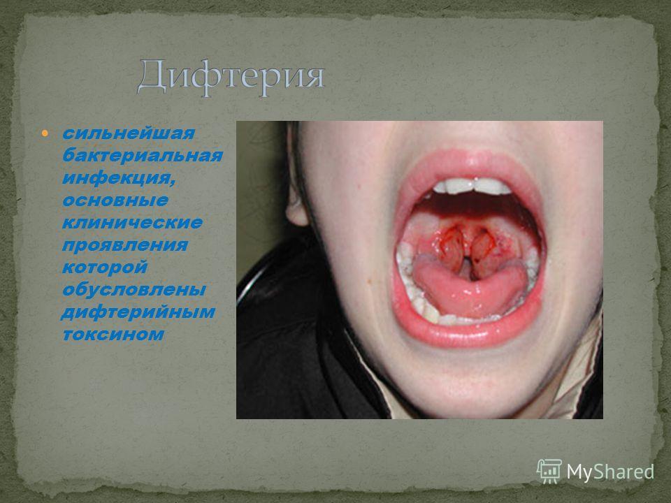 сильнейшая бактериальная инфекция, основные клинические проявления которой обусловлены дифтерийным токсином