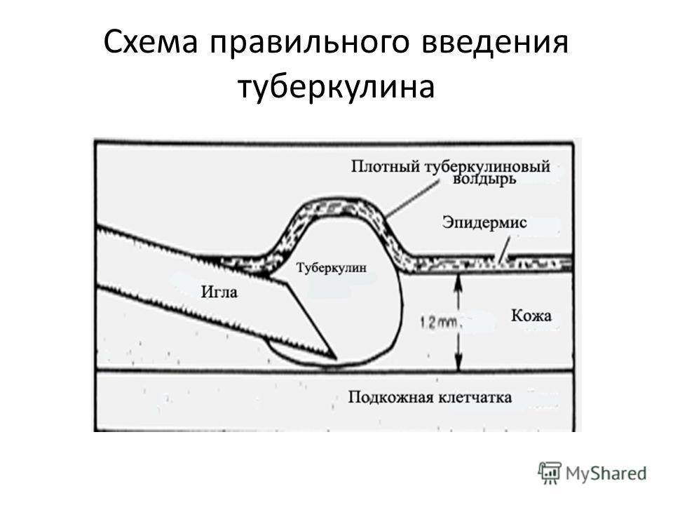 Схема правильного введения туберкулина