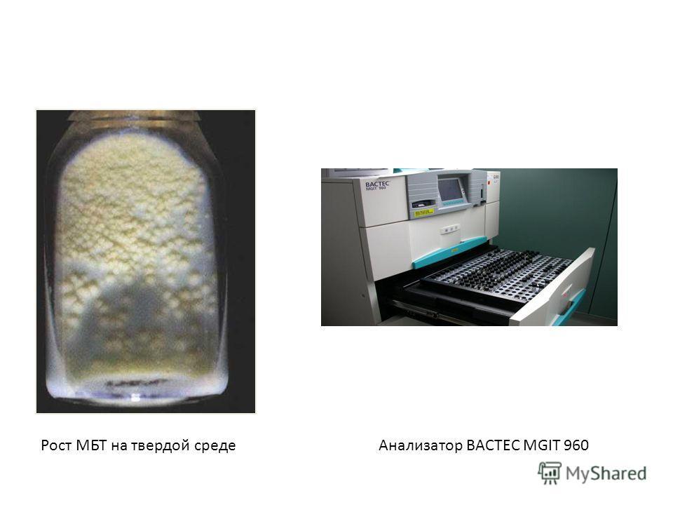 Рост МБТ на твердой средеАнализатор BACTEC MGIT 960
