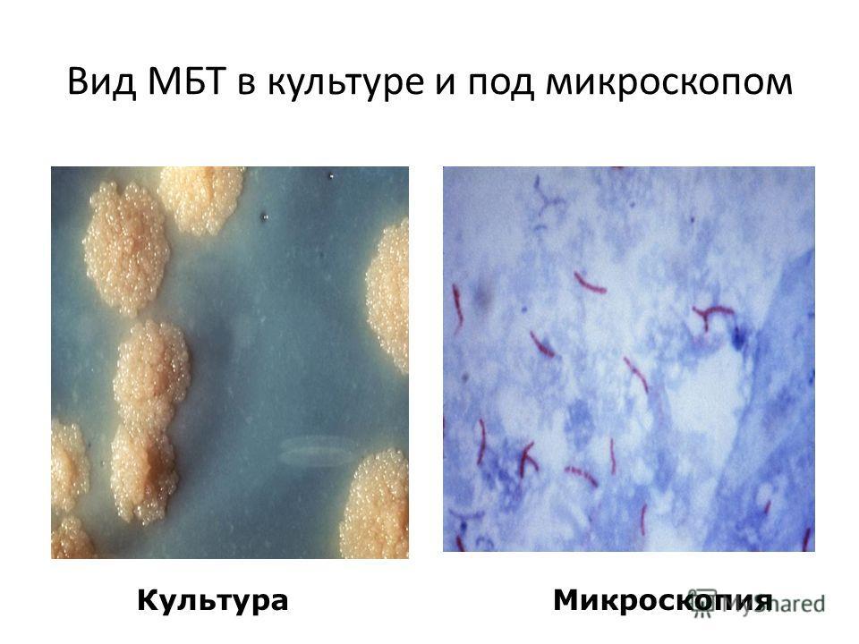 Вид МБТ в культуре и под микроскопом КультураМикроскопия