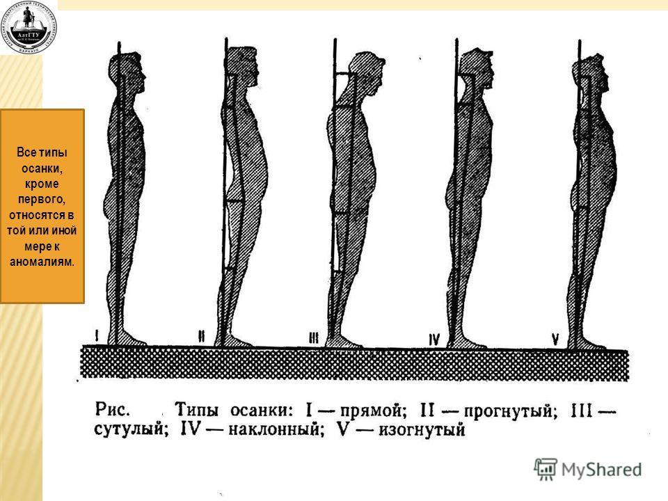Все типы осанки, кроме первого, относятся в той или иной мере к аномалиям.