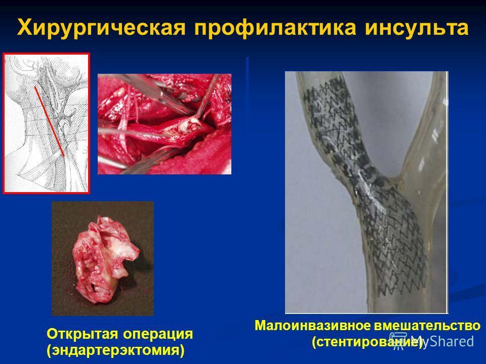 Хирургическая профилактика инсульта Открытая операция (эндартерэктомия) Малоинвазивное вмешательство (стентирование)