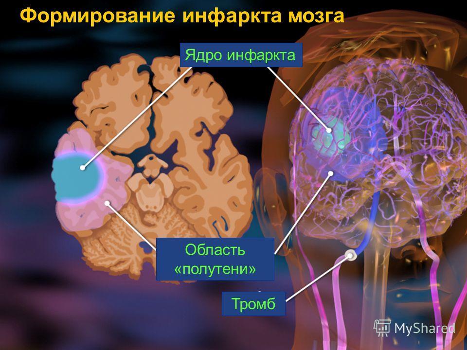 Ядро инфаркта Область «полутени» Тромб Формирование инфаркта мозга