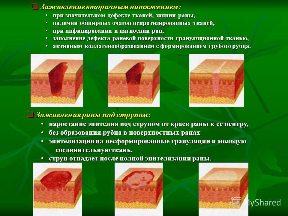 Заживление вторичным натяжением: Заживление вторичным натяжением: при значительном дефекте тканей, зиянии раны, при значительном дефекте тканей, зиянии раны, наличии обширных очагов некротизированных тканей, наличии обширных очагов некротизированных