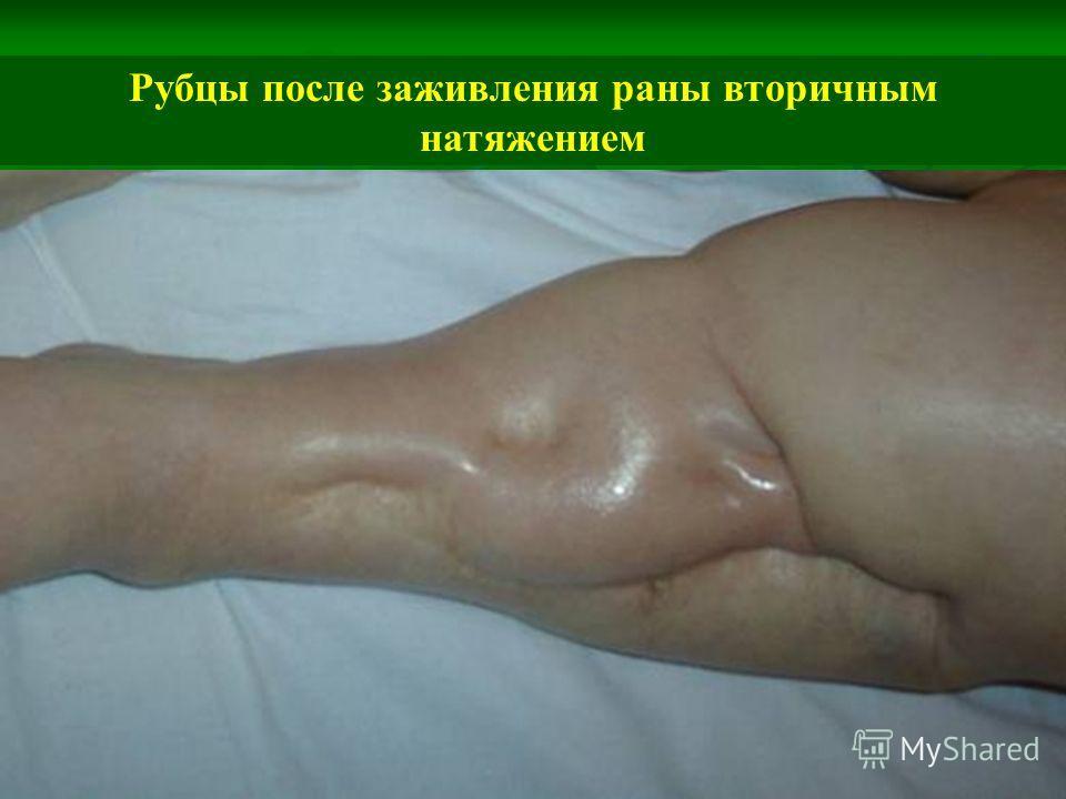 Рубцы после заживления раны вторичным натяжением