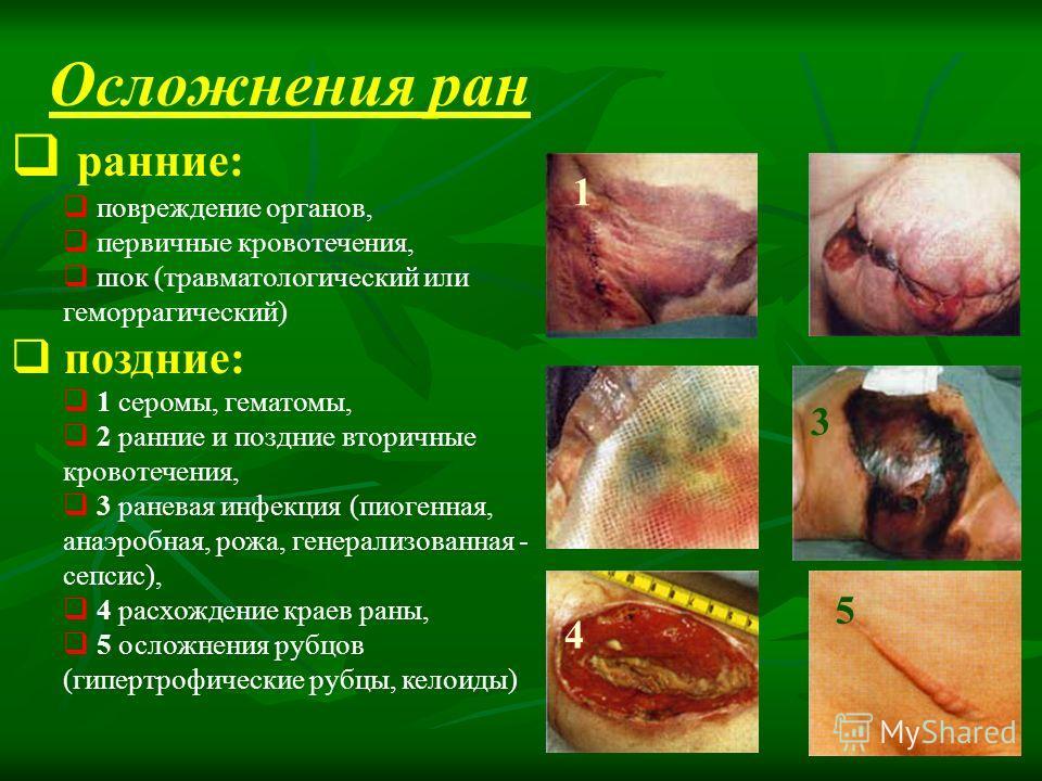 Осложнения ран ранние: повреждение органов, первичные кровотечения, шок (травматологический или геморрагический) поздние: 1 серомы, гематомы, 2 ранние и поздние вторичные кровотечения, 3 раневая инфекция (пиогенная, анаэробная, рожа, генерализованная