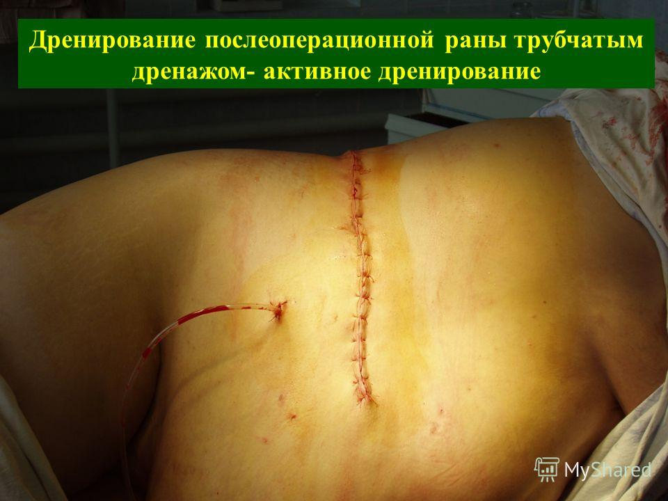 Дренирование послеоперационной раны трубчатым дренажом- активное дренирование