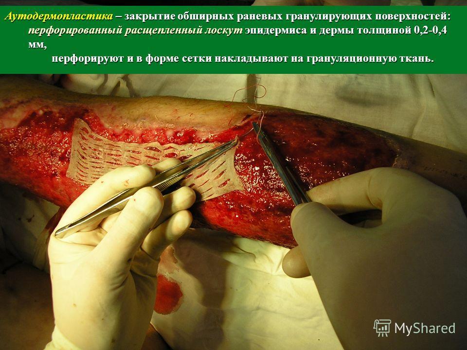 Аутодермопластика – закрытие обширных раневых гранулирующих поверхностей: перфорированный расщепленный лоскут эпидермиса и дермы толщиной 0,2-0,4 мм, перфорируют и в форме сетки накладывают на грануляционную ткань.